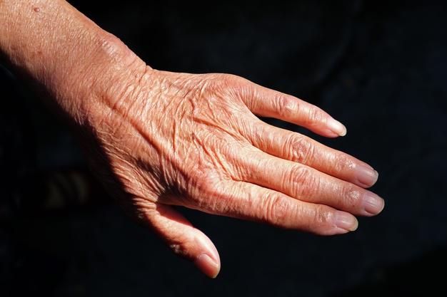 save-hand-wrinkle-in-elderly
